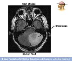 brain lesion locator than kinh pinterest brain brain lesions