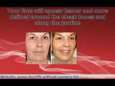 Face Exercises To Lift Sagging Cheeks: Facial Yoga For The Toning Of Chubby Cheeks