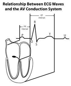 Long QT Syndrome Knowledge Base: Diagnosis & Evaluation: Electrocardiogram