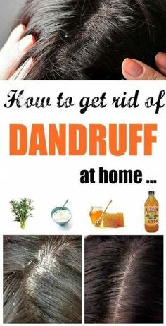 The conditions in your hair can quickly escalate with changing weather. Winter can aggravate dandruff and will intensify the symptoms. Dandruff can be easily combated with natural home solutions. Here are the top remedies for dandruff. Dandruff Solutions, Home Remedies For Dandruff, Hair Remedies, Herbal Remedies, Natural Remedies, How To Remove Dandruff, Getting Rid Of Dandruff, Flaky Scalp, Dry Scalp