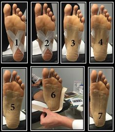 Easy strapping for Plantar Fasciitis http://cornerstonefootandankle.com/2015/06/foot-taping-for-plantar-fasciitis/