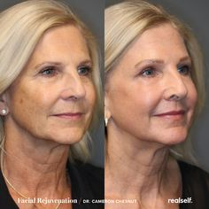 laser resurfacing with PRP, a modified sub-nasal lip lift, and upper eyelid filler were used in combination to rejuvenate the skin, reduce wrinkles, and lift the upper lip and eyelid. Co2 Laser Resurfacing, Skin Resurfacing, Anti Aging Treatments, Skin Treatments, Laser Skin Tightening, Laser Facial, Fractional Laser, Eyelid Lift, Lip Wrinkles
