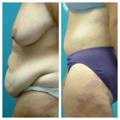 1000+ Images About Before & After Body Contouring On. Defense Attorney Houston Nyc Male Strip Shows. California Workers Comp Insurance. Earn Certificate Online Social Marketing Jobs. Cheapest Online Brokerage Account. Register Business Name Oregon. Dental Schools In South Florida. Real Estate Law Firm New York. Fort Collins High Speed Internet