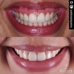 TRATAMENTO DO SORRISO GENGIVAL COM BOTOX .  A estética do sorriso é fundamentalmente influenciada por 3 fatores: dentes gengiva e lábios. Um sorriso atraente depende de uma adequada proporção desses. . Ao sorrir o lábio superior deve mostrar até 3 mm de gengiva e a linha #gengival deve seguir o contorno do lábio. . A exposição de mais de 3 mm de gengiva caracteriza o chamado sorriso gengival. #Repost @pablossiqueira with @repostapp.  Paciente com grande exposição do tecido gengival devido a…