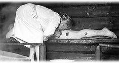Kuppaus on vanha kansanparannuskeino. Perinteiset kuppauskohdat ovat suurelta osin samoja kuin akupunktion pistokohdat.