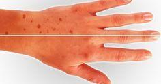 Коричневые пятна на коже, также известный как пигментные пятна, являются общей проблемой для миллионов людей и может реально повлиять на самооценку человека, и заставить их чувствовать себя старыми и некрасивыми. Данные пятна часто являются следствием процесса старения, но также могут быть вызваны чрезмерным пребыванием на солнце. Коричневые пятна появляются на руках, плечах и лице. Они …