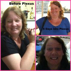 """This is my Beautiful mother in law....I don't know how much weight or inches she has lost, but I can tell you I can see such a huge difference in her looks, her attitude the way she feels about herself. Plexus has done so much and i cant wait to see her continue her Plexus Journey!!"" ~Amber Shepard"