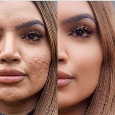 natural makeup - All For Hair Color Trending Celebrity Makeup Transformation, Real Beauty, Hair Beauty, Instagram Vs Real Life, Colored Hair Tips, Celebrities Before And After, Real Bodies, Freundlich, Makeup Routine