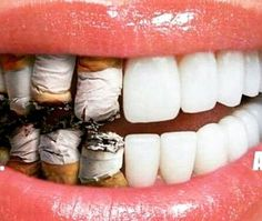 The effects of smoking increases your risk of cavities, cancer and other oral health issues. www.y2kdentistry.net