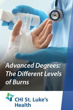 Advanced Degrees: The Different Levels of Burns Second Degree Burn Treatment, Skin Burns, Emergency Care, Healthy Tips, Spectrum, Stove