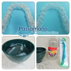 How to Clean a Crusty #invisalign Tray or Retainer at Home!!