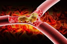 Remedies Blocked Arteries Learn how to reduce bad cholesterol (LDL) at home. - Learn how to reduce bad cholesterol (LDL) at home. Homemade Syrup, Homemade Mask, Vicks Vaporub, Rheumatoid Arthritis Diet, Medical Intuitive, Cholesterol Lowering Foods, Blood Pressure Remedies, Improve Blood Circulation, Gout
