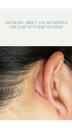 Often lump behind ear is harmless, but sometimes it is due to an infection or some other medical condition. Ear Infection, Bacterial Infection, Lump Behind Ear, Lymph Fluid, Its Time To Stop, Lymph Nodes, Dead Skin, Easy Peasy