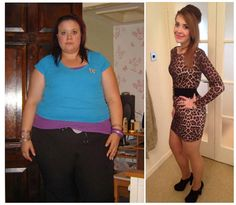This is the before and after of Hazel Dyson, who has lost an impressive 12.5 stone, well done!