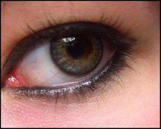 Lenticon Argentina: Riesgos de la cirugia refractiva-solucion para los...