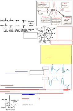 ECG Interpretation Cheat Sheet | Scribd