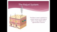 Tattoo Removal - Non laser - How it works - Rejuvi