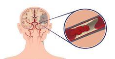 Život zachraňujúce tipy na predchádzanie mozgovej príhody (porážky)