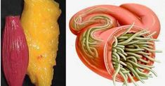 With these 2 ingredients, you will eliminate worms and deposits .-Com estes 2 ingredientes, você vai eliminar vermes e depósitos de gordura do c… With these 2 ingredients, you will eliminate worms and fat deposits from the body without suffering! Health Remedies, Home Remedies, Natural Remedies, Nutrition, Natural Medicine, Weight Gain, Weight Loss, Healthy Tips, Natural Health