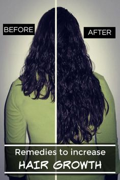 How To Increase Hair Growth? Hair Remedies For Growth, Hair Growth Treatment, Hair Growth Tips, Long Hair Wedding Styles, Wedding Hairstyles For Long Hair, Long Hair Styles, Sleek Hairstyles, Hairstyles For Round Faces, Reduce Hair Fall