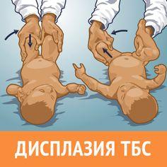 Симптомы дисплазии ТБС у детей