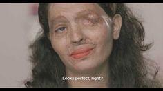Tutorial de Maquillaje de una Víctima de ataque con ácido te dejará mudo!