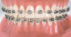 Our dental clinic has best Orthodontist to perform affordable Orthodontic Clip/Braces treatment in Trichy Road, Race Course, Sungam, Ramanathapuram, Coimbatore. Dental Braces, Teeth Braces, Dental Implants, Dental Care, Cute Braces Colors, Black Braces, Braces Girls, Brace Face, Short Hair