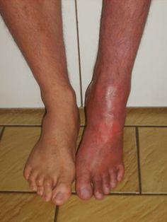 Syndrome douloureux régional complexe ou Algoneurodystrophie. Phase chaude  :  - Facteur déclenchant - Rougeur - Œdème - Douleur neuropathique et nociceptive