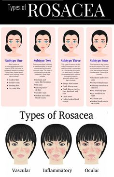 What is Rosacea and Are There Any Rosacea Treatments? Rosacea (pronounced 'ROH-ZAY-sha') is a condition of the skin often referred to as adult acne (although it shouldn't be confused with acne) that causes red blemishes to form on the nose and cheek area. Ocular Rosacea, Acne Rosacea, Acne And Pimples, Acne On Cheeks Causes, Rosacea Causes, Natural Remedies For Rosacea, Rosacea Remedies, Red Face Remedies, Skin Tips