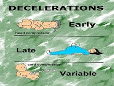 NCLEX Online Review Courses: Fetal Movement and Fetal Heart Rate Patterns