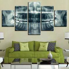 Dental X-ray - 5 Panel Canvas Art Set Mirror Wall Stickers, Framed Wall Art, Wall Canvas, Canvas Art, Canvas Prints, Photo Canvas, 3d Wall, Wall Decal, Dental Clinic Logo