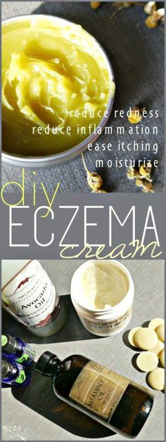 Eczema Cream DIY #FaceCreamForWrinkles