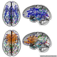 Men and women's brains are 'wired differently' Male brains are wired front to back, with few connections bridging the two hemispheres. In females, the connections criss-cross between left and right.