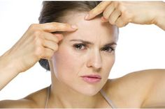 .Beauty Hacks: 10 SOS-Tipps gegen Pickel