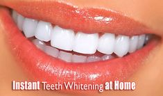 Instant Teeth Whitening at Home: Our favorite foods and drinks have a tendency to stain our teeth. Nowadays, there are many ways to Instant Teeth Whitening at Home; but, maximum of them are involved in unsafe chemicals that might be bleed through the gentle tissues inside the mouth or under the tongue.