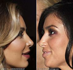 Kim Kardashian Caught in The Nose Plastic Surgery - she was beautiful, now she looks like a blow up doll..ruined her face