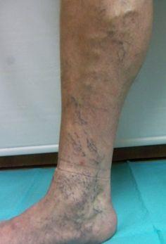 după operație varicoase vene pe picioare tratamentul laserului varicos varicos în kislovodsk
