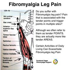 The finer points of leg pain related to #fibromyalgia #fibro #pain