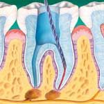 Root Canal Treatment | Root Canal Procedure | Dental Treatment for Root Canal – Colgate India