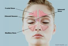 Natural Remedies for Sinus Congestion http://fitmom.hubpages.com/hub/Natural-Remedies-for-Sinus-Congestion