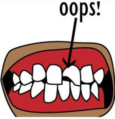 fratura dentário- blog mcb