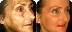 Just How Do Face Reflexology Techniques Work Effectively For Facial Tissue Strengthening And Stimulating?