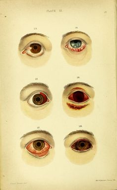 """""""Plate III. Fig. 13. A case of pterygium. Fig.14. An example of symblepharon. Fig. 15. An instance of simple ecchymosis of the conjunctiva, occasioned by the rupture of a small vessel in coughing. Fig. 16. The effects of a violent blow on the eye with the fist, as presented six days after the accident. Fig.17. Conjunctivitis. Fig. 18. Chemosis of the conjunctiva. """" 1867."""