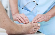 Everything you need to know if you're considering bunion surgery. Turf Toe, Bunion Remedies, Foot Remedies, Get Rid Of Bunions, Bunion Surgery, Bunion Relief, Pain Relief, Gout Relief, Essential Oils
