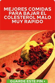 Comidas para bajar el colesterol malo Varias comidas que son buenas para bajar el colesterol. Cómo controlar el colesterol alto de manera natural. Dieta recomendada para reducir lipoproteínas de baja densidad. #remedioscaseros #salud #Comidas #colesterol #bajarcolesterol Kidney Health, Good Advice, Cholesterol, Healthy Living, Remedies, Food And Drink, Menu, Desserts, Recipes