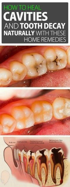 How to Heal Cavities and Tooth Decay Naturally with These Home Remedies - How To Take Care Of Oral Health - Dental Oral Health, Dental Health, Dental Care, Home Remedies, Natural Remedies, Natural Cavity Remedy, Natural Healing, What Causes Tooth Decay, Cure Tooth Decay