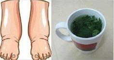Este é o melhor remédio caseiro para pernas inchadas e para limpar os rins