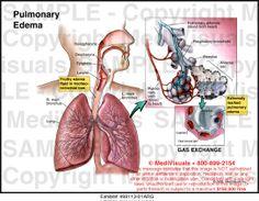 pulmonary Edema visual effects Pulmonary Edema, Case Presentation, Visual Effects, Nursing, Medical, Health, Health Care, Medicine, Med School
