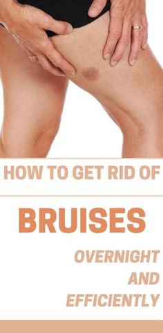 Inattention makes the bruises appear in the most inappropriate moments. Bruises come and go on their own, but they can still be a nuisance. If you want to get rid of a bruise faster, read this guide and see how to get rid of them overnight with natural remedies. Ice the area. Putting something cold on the bruise will reduce swelling and help it heal more quickly. Do this as soon as possible, and you can stop the bruise from spreading so far. Fill a resealable plastic bag with ice chips, or…