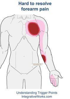 fi-hard-to-resolve-forearm-pain